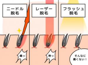 ヒゲ脱毛の施術種類と内容