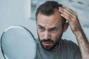 年代別の抜け毛の要因